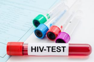 HIV-VIH-Sida-dépistage