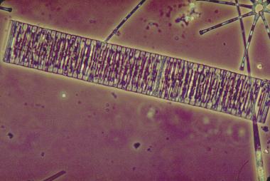 La pollution des rivières se mesure à l'ADN de micro-algues